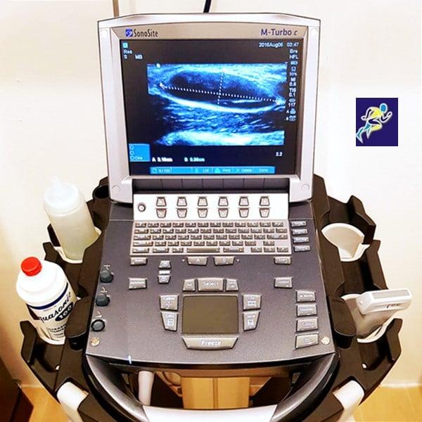 กระดูกและข้อ เครื่องอัลตร้าซาวนด์เพิ่มประสิทธิภาพ ในการตรวจวินิจฉัยโรค