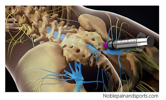 การฉีดยาต้านการอักเสบ หมอนรองกระดูกทับเส้นประสาท