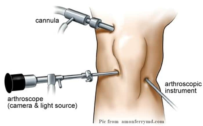 Arthroscopic Surgery รักษาโรคข้อเข่าเสื่อม