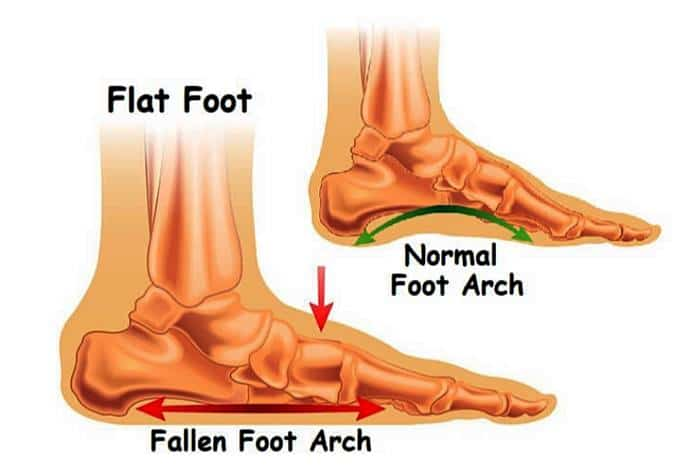 ลักษณะ เท้าแบบ flat foot