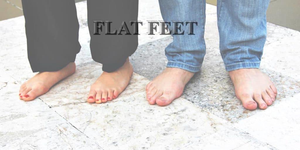 ปัญหา เท้าแบน เท้าแป เท้าเป็ด (FLAT FEET) ส่งผล กับร่างกาย อย่างไร ?