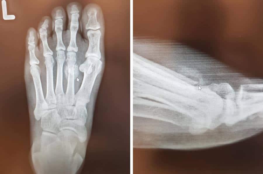 อัลตร้าซาวนด์ กระดูกเท้าหัก