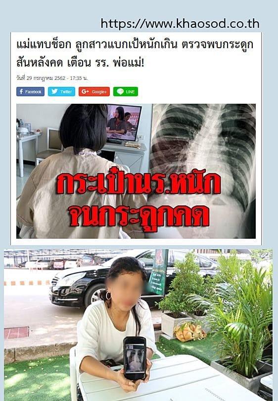 โรคกระดูกสันหลัง คดงอ