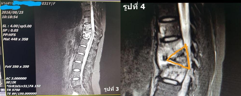 MRI กระดูก สะบัก