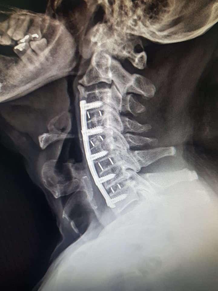 กระดูกเทียมแบบพิเศษ ( DBM ) เพื่อเพิ่มโอกาสในการเชื่อมติดกันของกระดูก