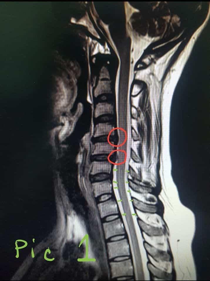 โรคหมอนรองกระดูกทับเส้นประสาท ส่วนคอ เคสผู้ป่วยสาวสวยวัย 45 ปี