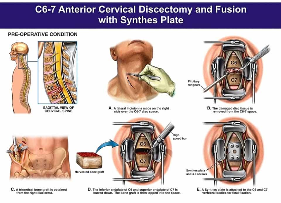 การผ่าตัด โรคหมอนรองกระดูกสันหลัง ทับเส้นประสาท ส่วนคอ