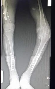 Varus Knee ผ่าตัดเปลี่ยน ข้อเข่าเทียม